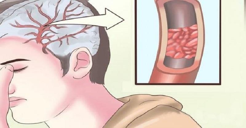 10 продуктов старательно очистят артерии: в целях профилактики инфаркта. Еда вместо лекарств!